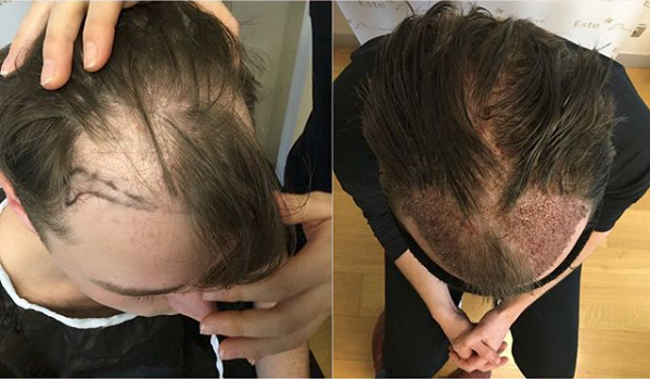 DHI Hair Transplant Without Shaving Post-Op